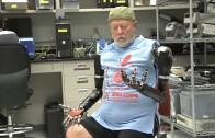Hombre amputado con brazos bionicos